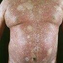 Poikilodermia vascularis atrophicans. 63 Jahre alter Patient mit seit 20 Jahren bestehendem, lang...