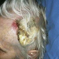 Pomadenkruste. Cornu-cutaneum-artigeHornschichtverdickung bei einer älteren, pflegebedürftigen P...