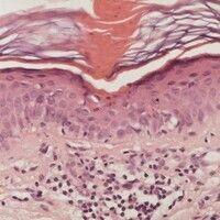 Porokeratose. Fokaler Parakeratosekegel über einem Epidermissegment mit Dyskeratosen.