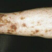 Polyarteriitis nodosa, systemische. Seit 5 Jahren bestehendes Krankheitsbild mit bizarr angeordne...