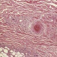 Polyarteriitis nodosa, systemische. Ausschnitt aus obiger Abbildung. Frischer Thrombus im Gefäßlu...