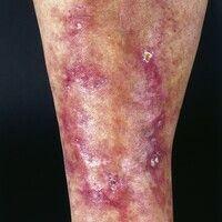 Polyarteriitis nodosa, kutane. Kutane, subkutanetastbare, z.T. ulzerierte, schmerzhafte Papeln u...