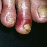 Pernio. Im symptomfreien Intervall wenig auffällige, rote Flecken und glatte, rote Plaques, die s...