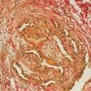 Phlebothrombose. Rekanalisiertes thrombosiertes Gefäß. Elastica van Gieson-Färbung.