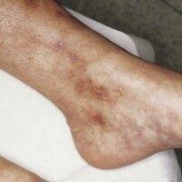 Phospholipid-Antikörper-Syndrom. Im Bereich des Unterschenkels und der Knöchelregion einer 35-jäh...