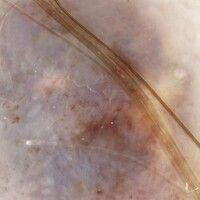Pilomatrixom. Auflichtmikroskopie: Bläulich-opake und gelblich-weiße Plaques (Kalzifikationsherde...