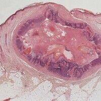 Pilomatrixom. Gut abgegrenzter zystischer Tumor im Korium mit breiter basaloider Epithelschicht. ...