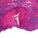 Pilonidalsinus. Pseudoepitheliomatöse Epidermishyperplasie der Wandung eines Epithelganges in der...