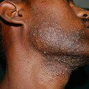 Pseudofolliculitis barbae.