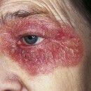 Psoriasis vulgaris. Lokalisierte Psoriasis. Keine weiteren Herde! Chronisch dynamische, rote, rau...