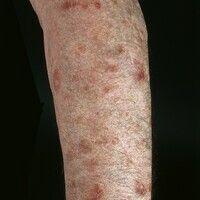 Porokeratosis superficialis disseminata actinica. Chronisch persistierende, asymptomatische, an d...