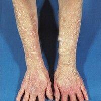 Porphyria cutanea tarda. Ausgeprägte Narbenbildung im Bereich der Unterarme und Handrücken bei ei...