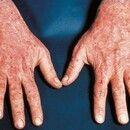Porphyria cutanea tarda. Schuppende und krustige Veränderungen an Handrücken und Unterarm, flächi...
