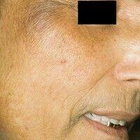 Porphyria cutanea tarda. Schmutzig braune Hyperpigmentierungen; Hypertrichose im Bereich der Schl...
