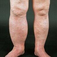 Postthrombotisches Syndrom. Deutliche Umfangsvermehrung, livide Verfärbung des rechten Beines, pr...
