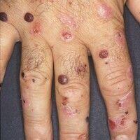 Porphyria cutanea tarda. Hier abgebildet ist eine Detailaufnahme der Hand bei insgesamt generalis...