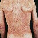 Pustulose, sterile eosinophile. Multiple, chronische, seit 6 Monaten rezidivierend verlaufende, a...