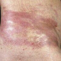 Sklerodermie zirkumskripte (Plaque-Typ). Großflächige, zirzinär begrenzte, rot-violette, glatte P...