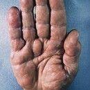 Schwannom. Multiple, im Verlauf der sensiblen Fingernerven angeordnete, 1?2 cm große, schmerzlose...