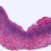 Syphilis: Primäraffekt. Ulkus mit seitlicher Epithelbegrenzung. Basal dichtes, bandförmiges, entz...