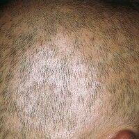 Syphilis acquisita. Alopecia specifica diffusa. Kleinherdiger, nicht entzündlicher Haarausfall, t...