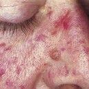 Teleangiectasia hereditaria haemorrhagica. Bei der 40-jährigen Patientin bestehen blaurote bis du...