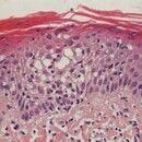 Spongiose. Detailvergrößerung: Spongiotische Bläschen intraepidermal.