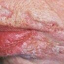 Tuberculosis cutis luposa. Partiell abgeheilter und vernarbter Herd im Bereich der Unterlippe. We...
