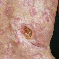 Ulkus der Haut:55J ahre alte Patientin mit seit 10 Jahren bestehendem kutanem T-Zell-Lymphom vom...