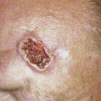 Ulkus der Haut: ulzeriertes Basalzellkarzinom. 61 Jahre alter Patient mit schnell progredienter U...
