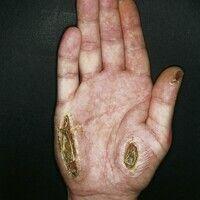 Ulkus der Haut:scharf begrenzte Ulzeration in gesunder Haut mit Nekrosenbildung. Keine Schmerzen...
