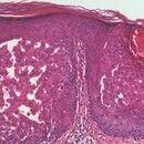 Verruca seborrhoica. Klonaler Typ (Epitheliom, intraepitheliales): Ausschnitt aus obiger Abbildun...