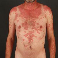 Lupus erythematodes, subakut-kutaner. Innerhalb wenigerMonatesich entwickelndes, lichtbetontes ...