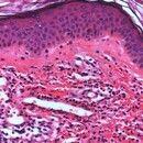 Vaskulitis, leukozytoklastische (non-IgA-assoziierte). Detailaufnahme: (Noch)intaktes Epithel mit...