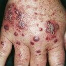Vaskulitis, leukozytoklastische (non-IgA-assoziierte). Multiple, petechiale Einblutungen und hämo...