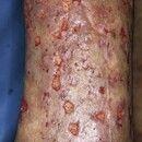 Vaskulitis, leukozytoklastische (non-IgA-assoziierte). Multiple vaskulitische Ulzera mit petechia...