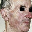 Leukämie, chronisch-lymphatische der Haut vom B-Zell-Typ. Seit einigen Monaten zunehmende, weiche...