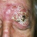 Lymphom, kutanes T-Zell-Lymphom. Typ Mycosis fungoides, Tumor-Stadium. Seit Jahren bestehende, sc...