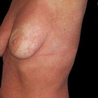 Lupus erythematodes systemischer:chronisches, UV-provozierbares, makulo-papulöses Exanthem; begl...