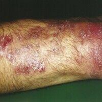 Candida-Granulom. Rezidiv an der Unterarm-Streckseite bei einem 28-jährigen Patienten 1 Jahr nach...