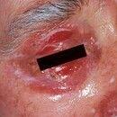 Toxische epidermale Nekrolyse. Befall der Augenlider und Umgebung. Toxische epidermale Nekrolyse ...