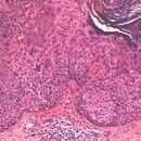 Bowen, M.. Detailaufnahme: Zellen vergrößert mit hellem Zytoplasma, pleomorphen Kernstrukturen, z...