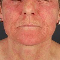 Airborne Contact dermatitis:chronisches (>6 Wochen) flächenhaftes, juckendes und brennendes E...