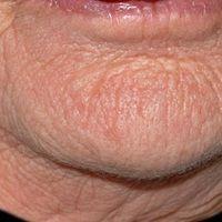 """Elastosis actinica: schwere flächige Elastose der Haut mit geblich-weißlichen """"Einlagerungen"""" sow..."""