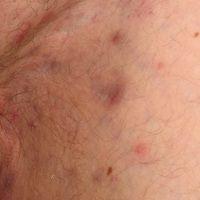 Botryomykose. Wenig spektakulärer klinischer Befund. Umschriebenes, wenig schmerzhaftesAreal mit...
