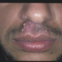 Folliculitis barbae: Eitrige, akute einschmelzendeFollikulitis der Bartregion.