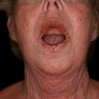 Schwere chronische glanduläre Cheilitis unter Vemurafenib-Therapie.