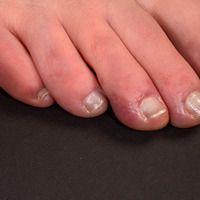 Chilblain Lupus - temperaturabhängige Rötung, Schwellung und Schmerzhaftigkeit mehrere Zehen.
