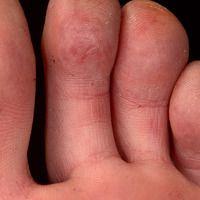 Chilblain Lupus: flächige, schmerzhafte Rötungen der Plantarseite mehrerer Zehen.