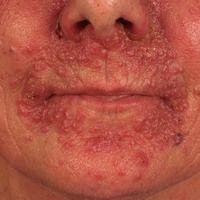 Dematitis periorale. Granulomatöser Typ der perioralen Dermatitis: dem Krankheitsbnild ging ein m...